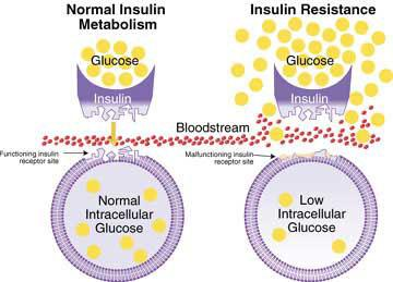 The Path from Weight Gain to Insulin Resistance to Diabetes