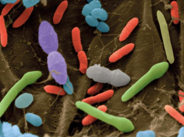 How to Manage 100 Trillion Bacteria in Your Gut