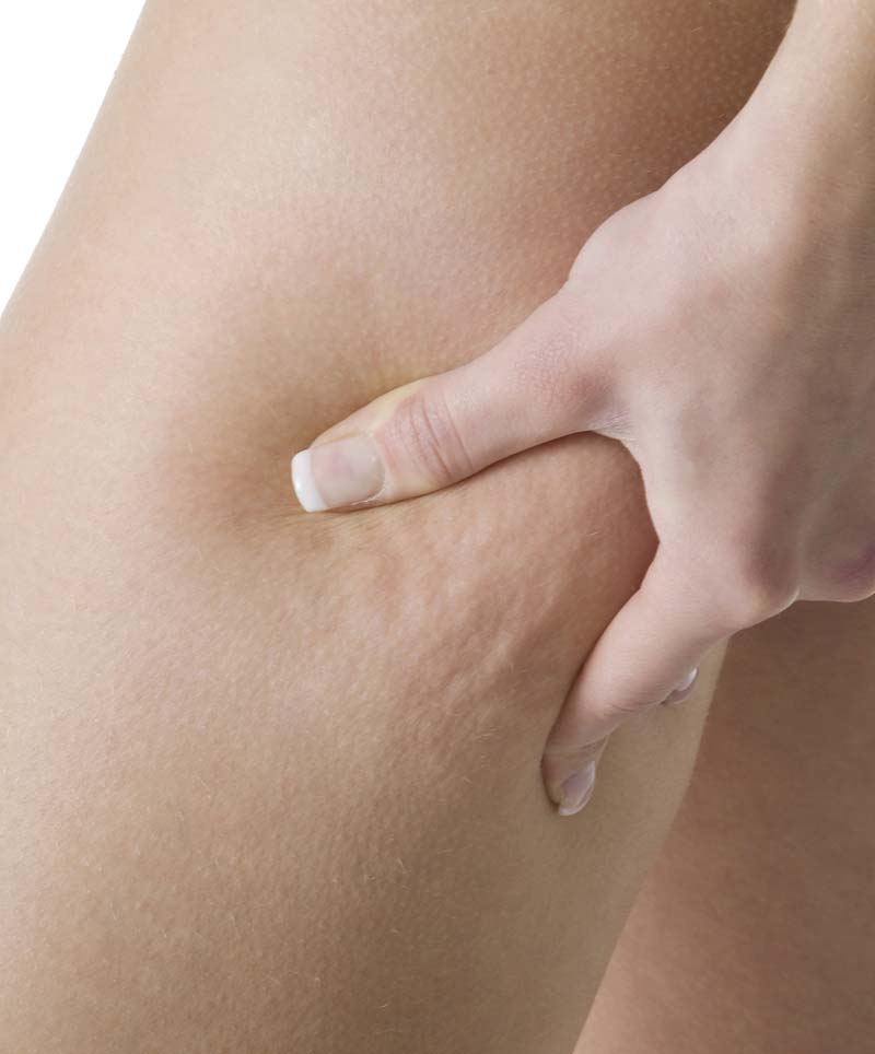 What Food Can Help Reduce Cellulite?