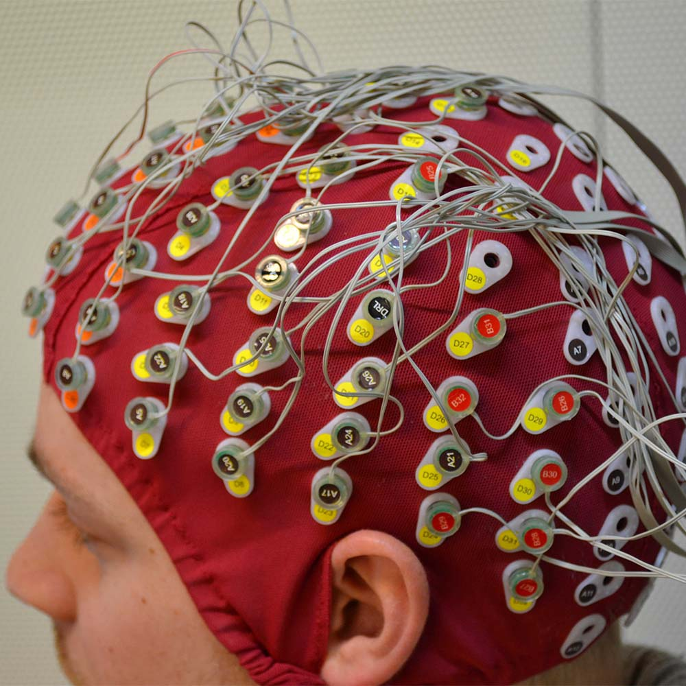 Is Neuroscience the future of Weight Loss?